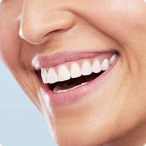 Răng trắng sáng hơn